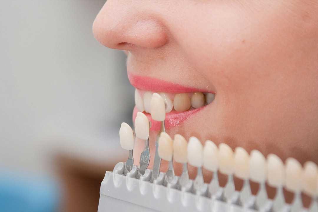 Определение оттенка пораженного зуба при помощи особой шкалы
