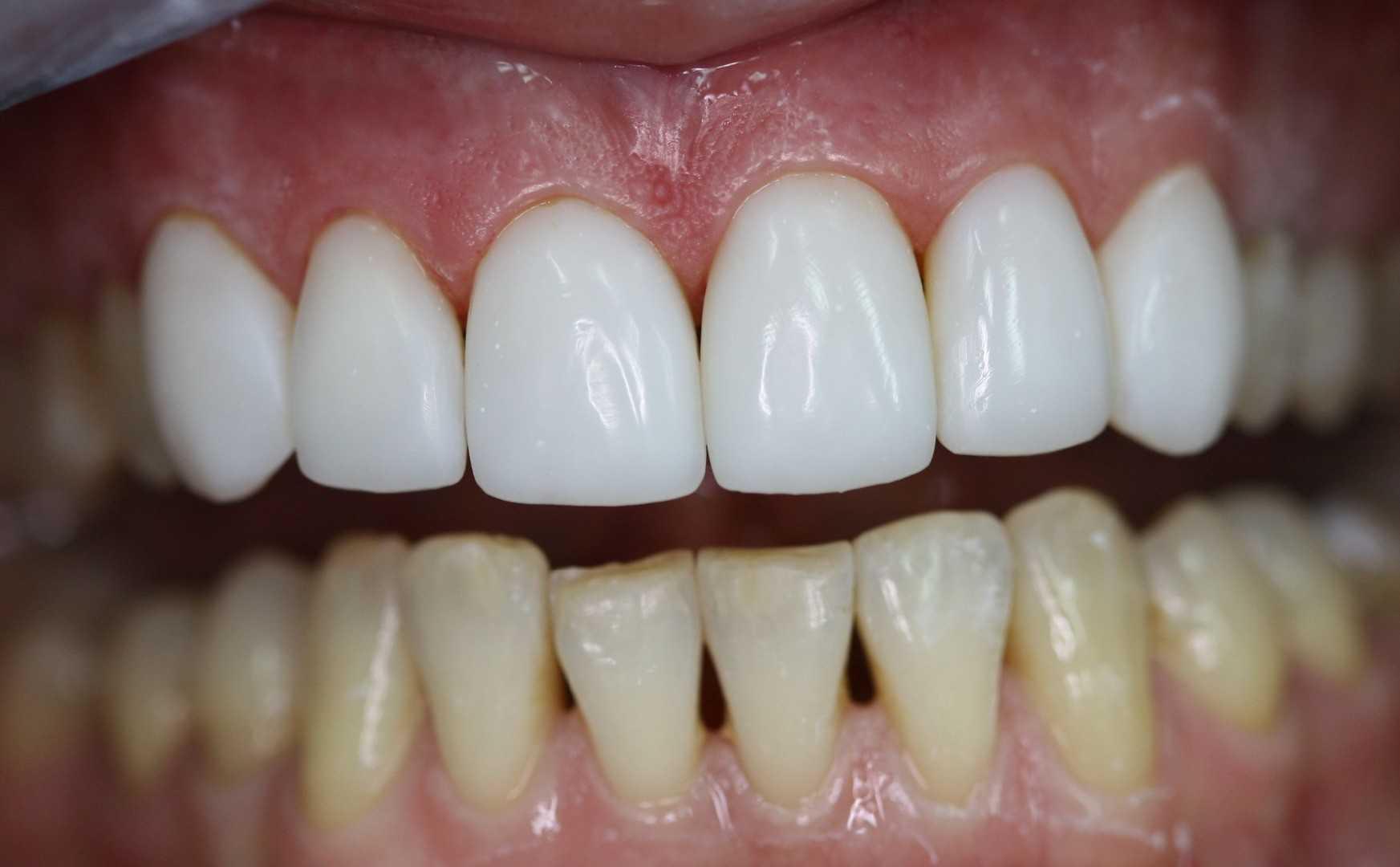 Где лутчше делать зубы в краснодаре форум фото 798-549