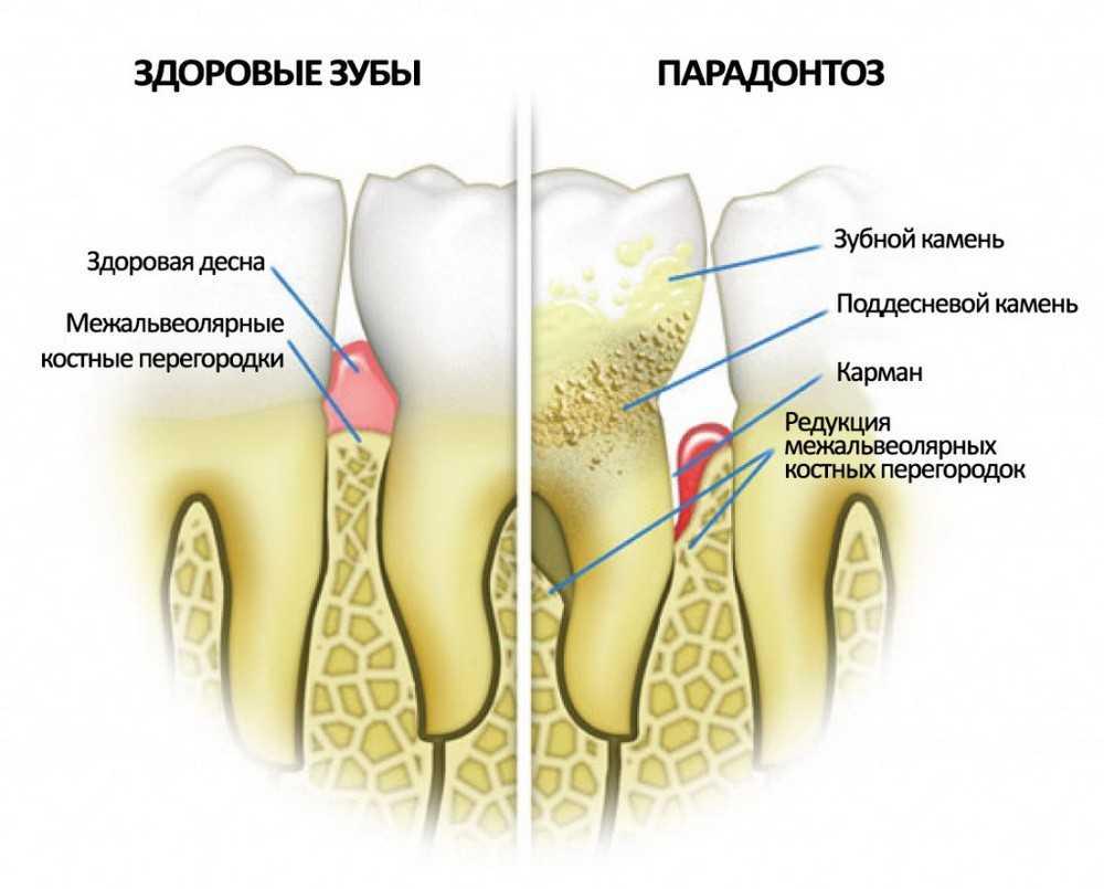 Здоровый зуб и пародонтоз