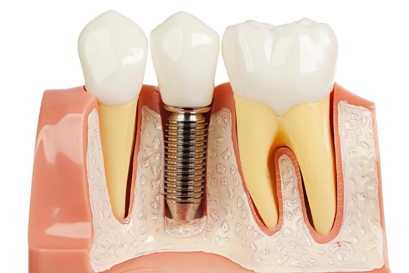 Зубной имплант