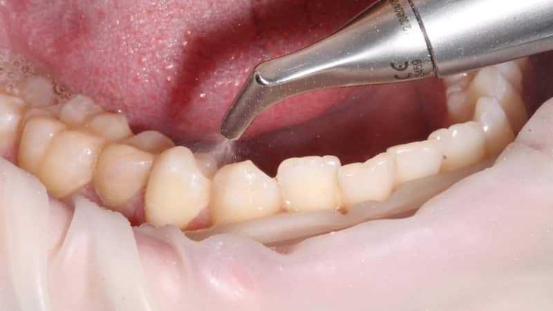Ультразвуковая чистка зубов: методика, эффективность