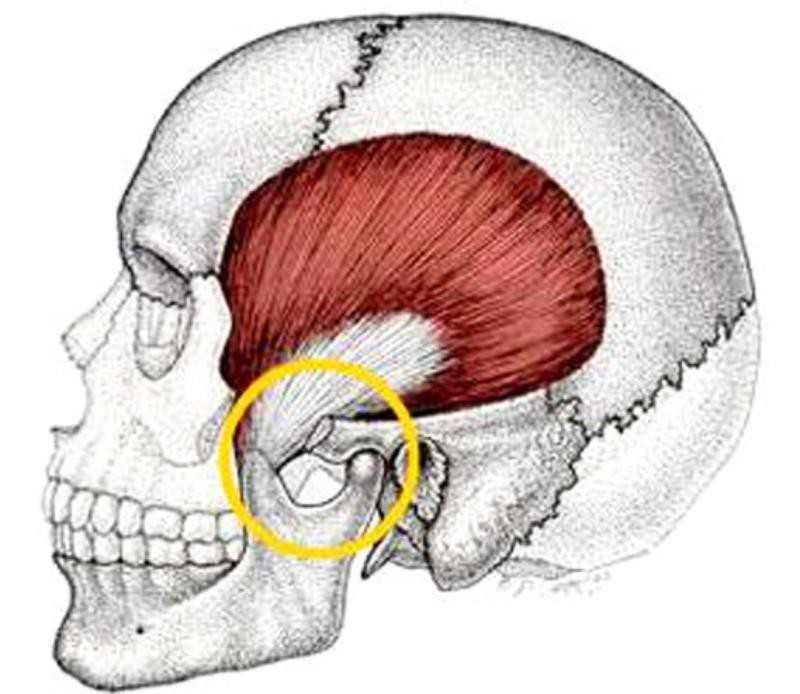Дисфункция височно-нижнечелюстного сустава не закрывается рот сближенность скакательных суставов у такс