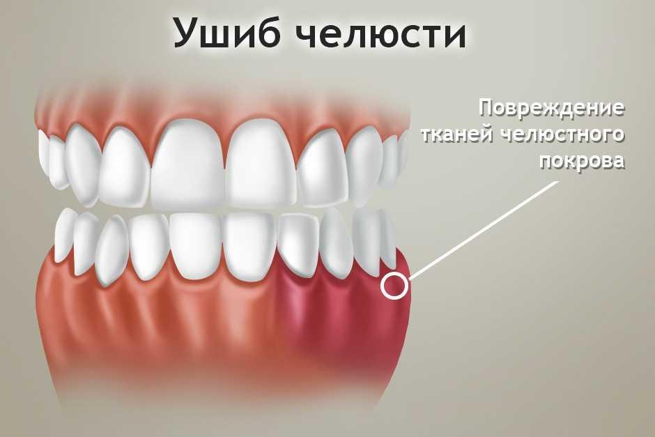 Ушиб челюсти