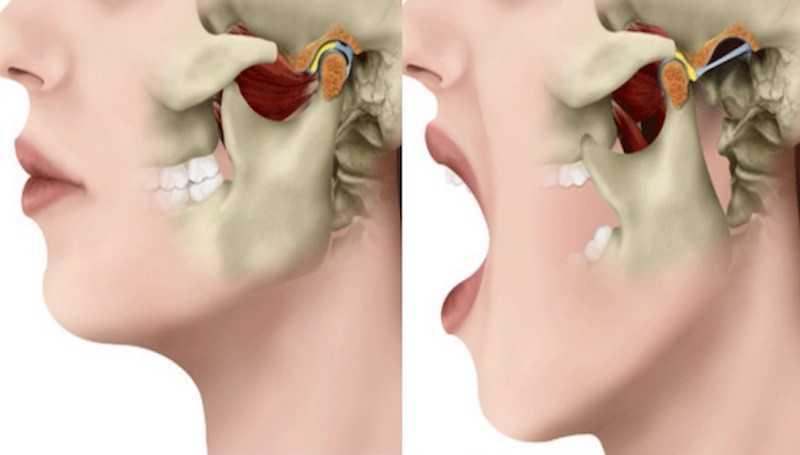 Справа - вывих нижней челюсти