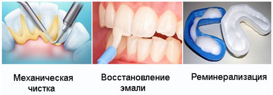 Аппликации на зубы из зубного порошка