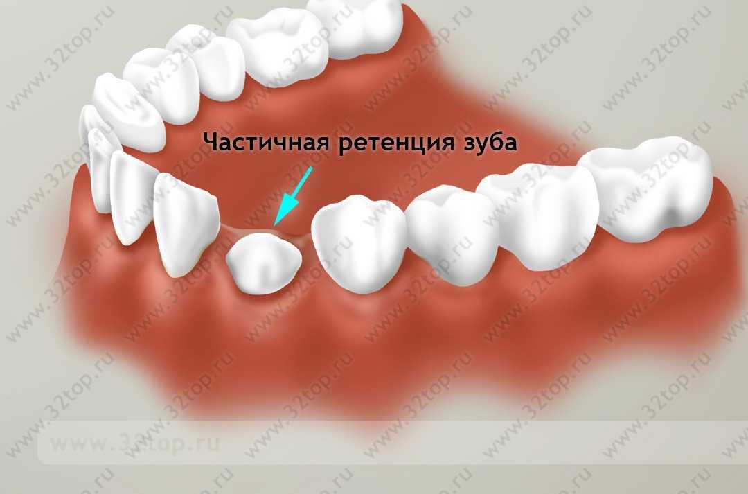 Причина ретенции зуба