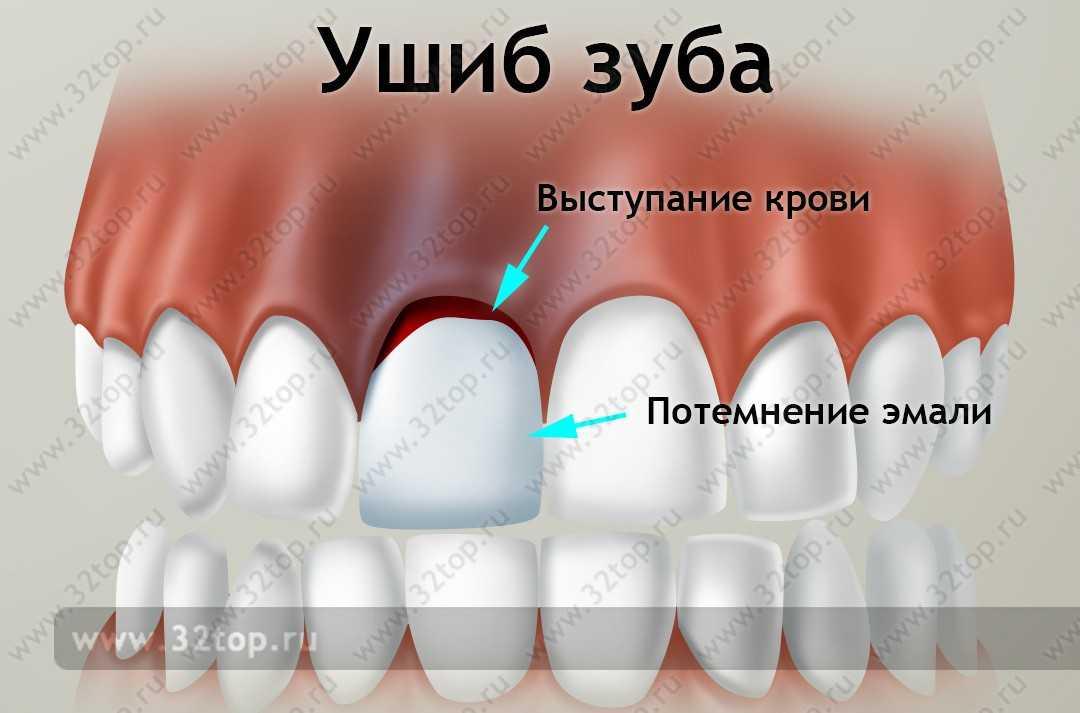 Ушиб зуба: причины, симптомы, последствия, лечение