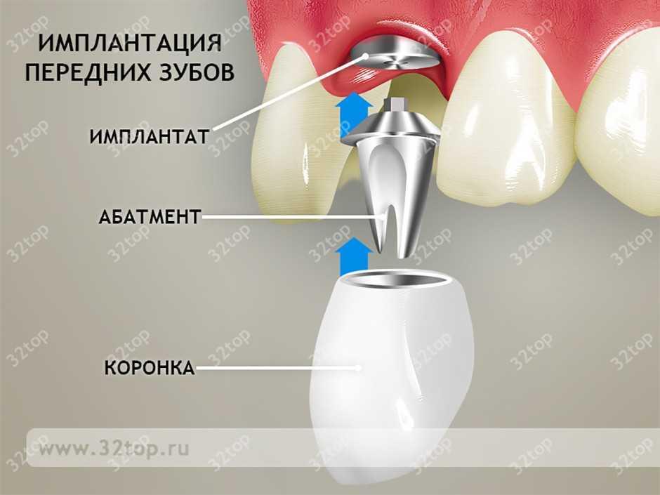 стоматология в ярославле имплантация