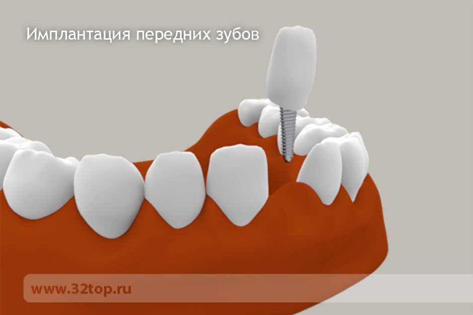 Кто имплантирует зубы