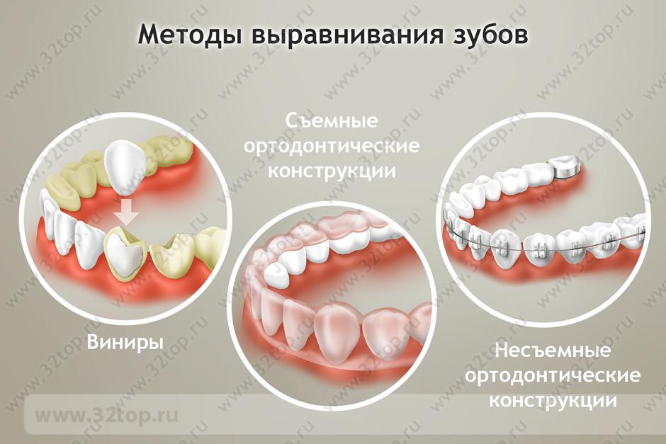 Методы выравнивание зубов