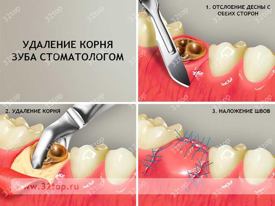 Как сделать зуб на оставшемся корне