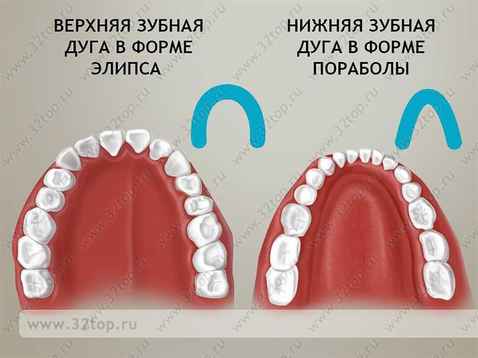 первой зубная дуга картинка осторожны