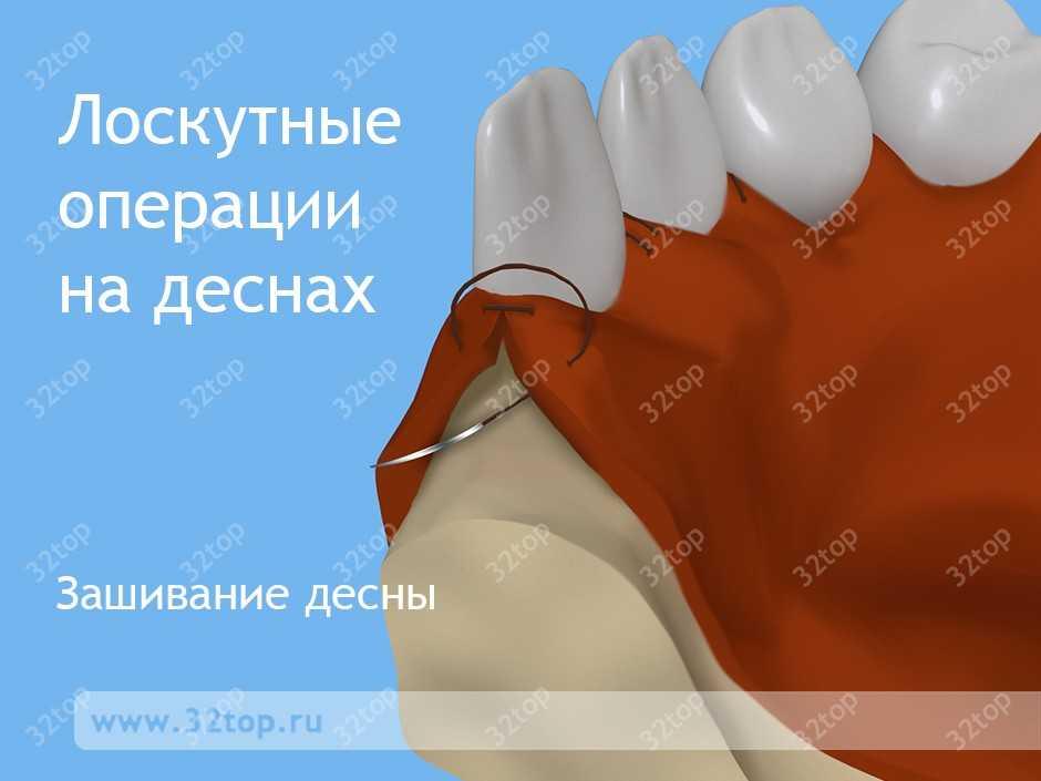 Зашивание десны