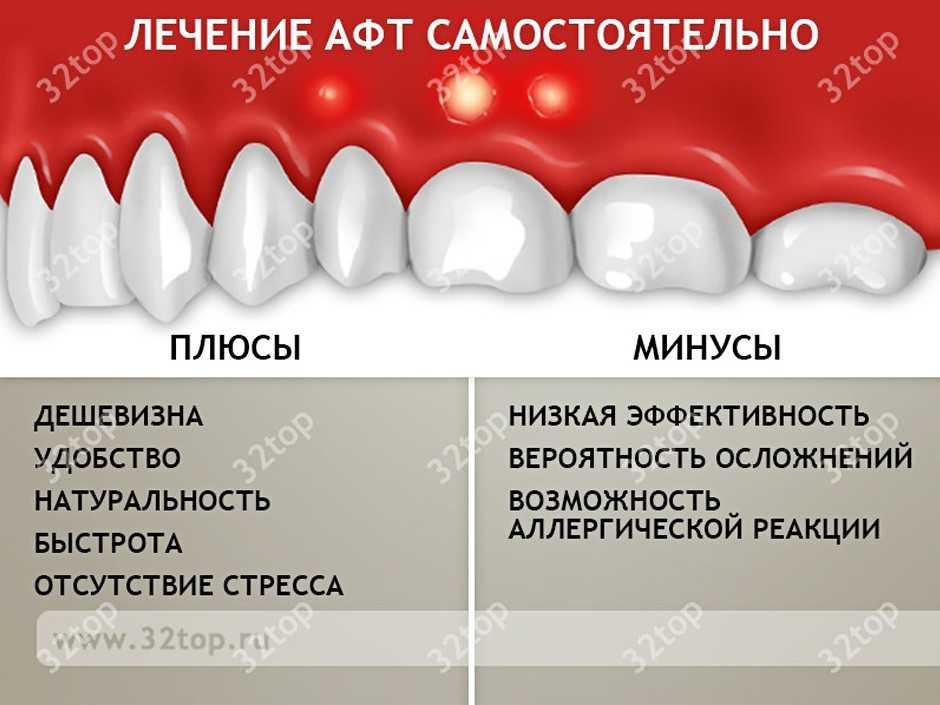 афты во рту фото лечение