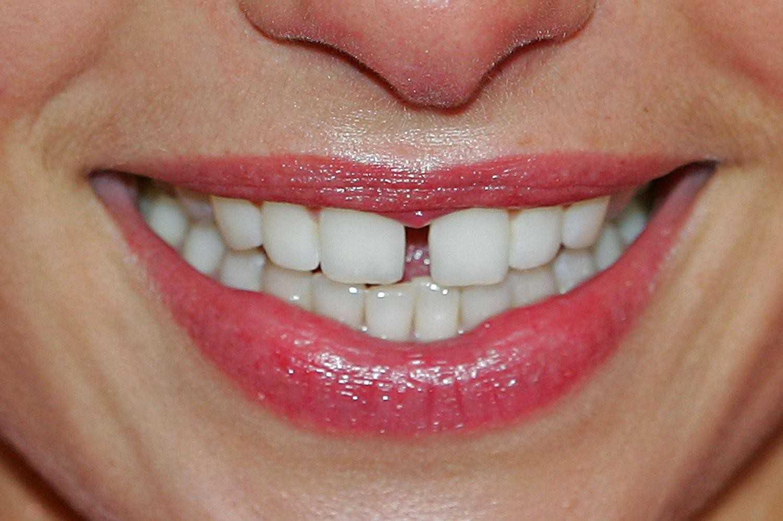 Шатается зуб - что делать, в чем причины, как лечить? Гид по 81