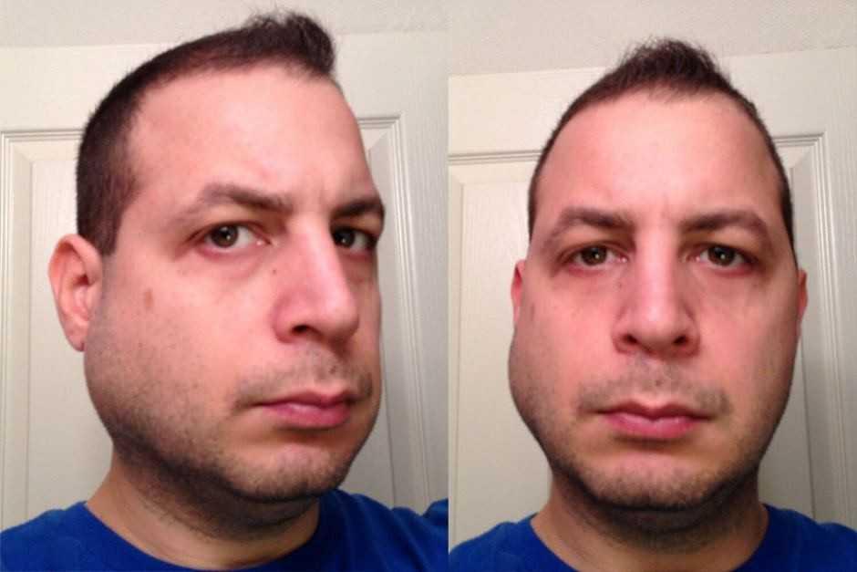 Отёк после удаление зуба
