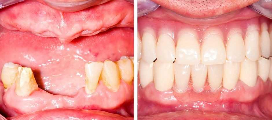 Бюгельное протезирование: до и после