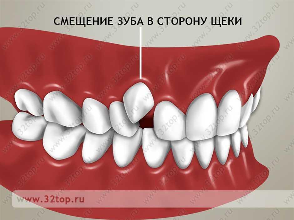 Ретинированные и дистопированные зубы реферат 4717