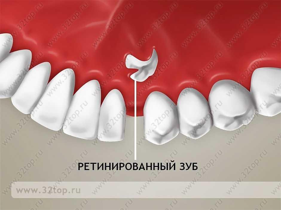 Ретинированные и дистопированные зубы реферат 7542