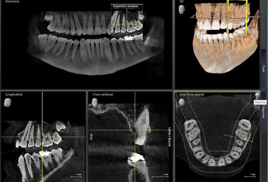 Панорамная 3D томография челюст