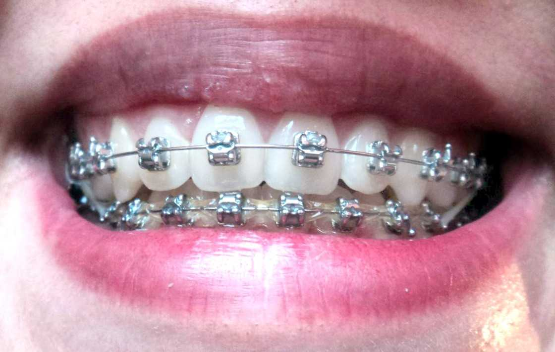 Брекет-система на зубах