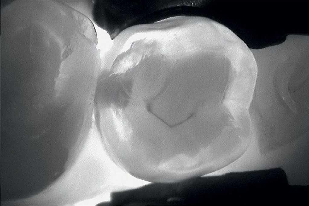 Трансиллюминация зуба