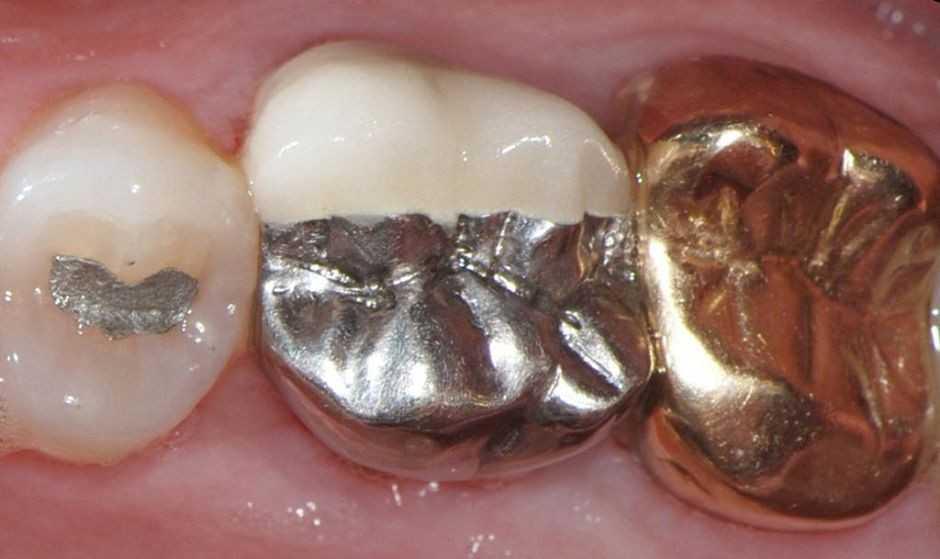Гальванизм возникает когда у человека стоят металлические протезы или импланты, они соединяются между собой слюной, которая проводит ток