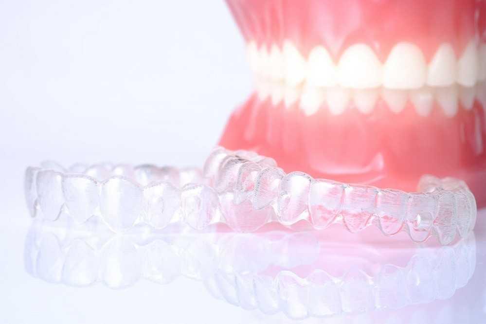 Стоматологическая каппа