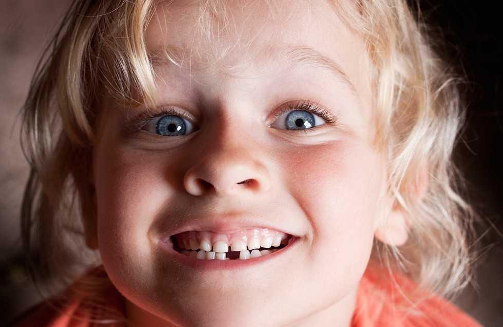 Кровоточивость десен у детей также возникает из-за снижения иммунитета на фонепрорезывания постоянных зубов