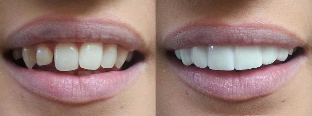 Выравнивание зубов винирами: до и после