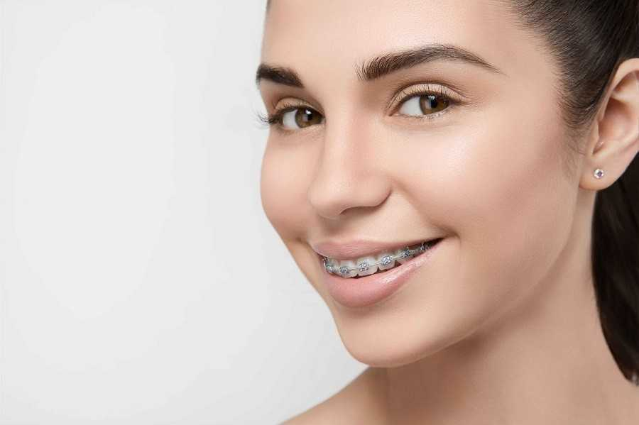 Выравнить зубы можно в любом возрасте