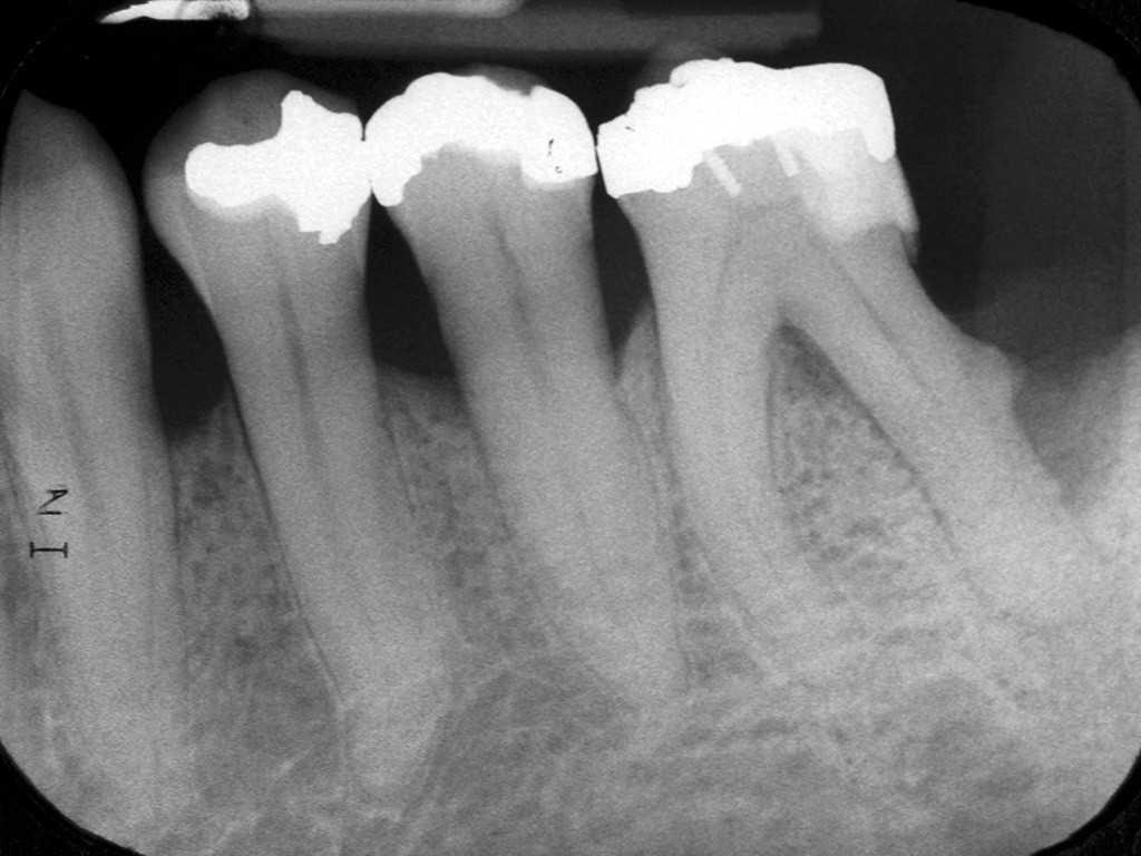 Рентгеновский снимок зубов с пульпитом