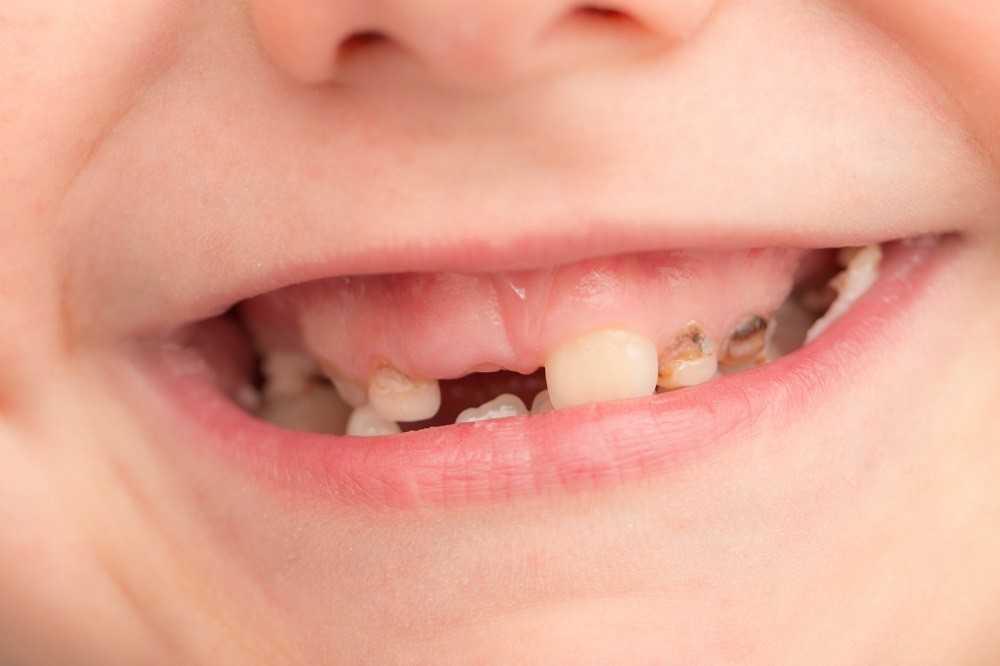 Детские зубы с кариесом
