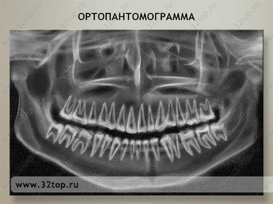 Панорамный снимок челюсти