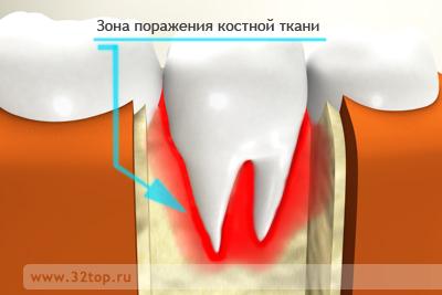 классификация остеомиелита челюстей